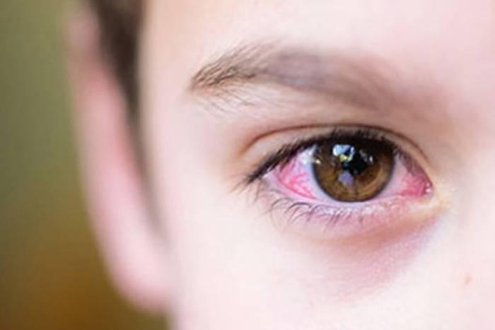 красные белки глаз у новорожденного