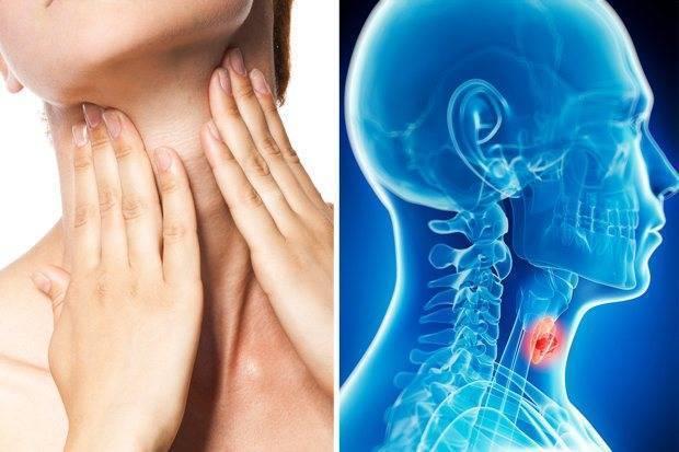 Рак горла: симптомы и проявления на разных стадиях у мужчин и женщин