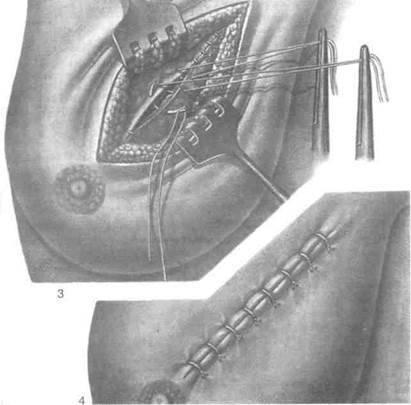 Современные методы удаления фиброаденомы молочной железы у женщин