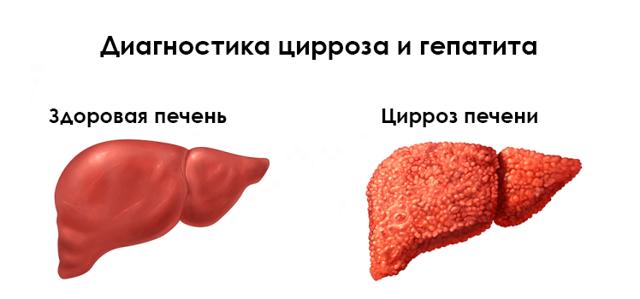 курение при гепатите с