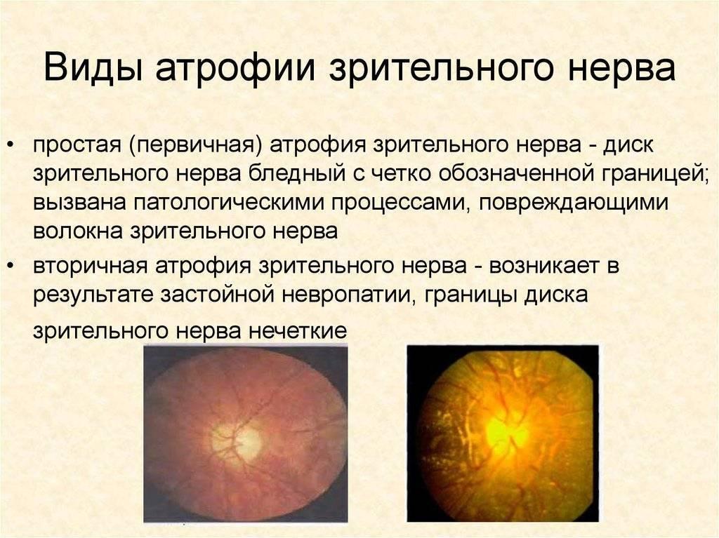 Атрофия зрительного нерва - симптомы, лечение, причины