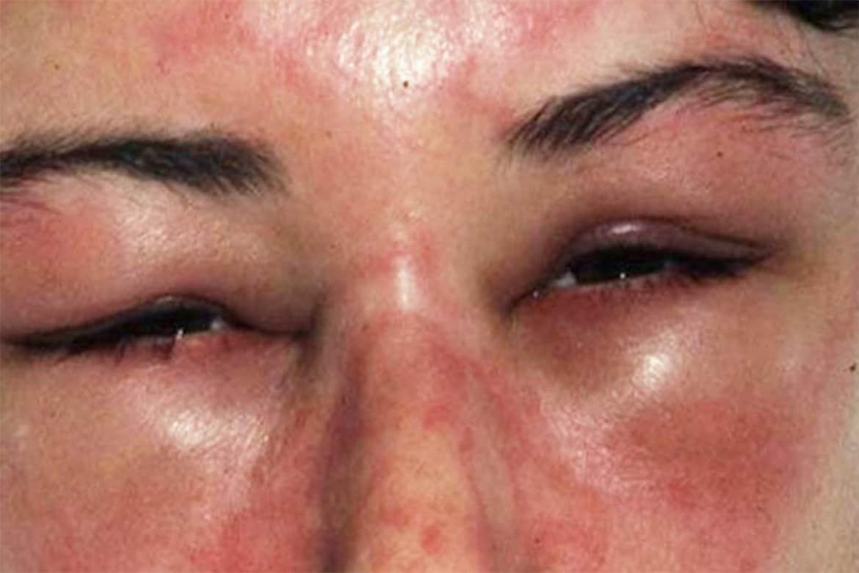 Аллергический отек слизистой носа лечение народными средствами. как справиться с отеком носа аллергической природы