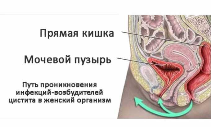 Цистит: лечение в домашних условиях, процедуры, различные рецепты