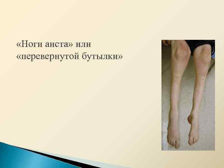 Болезнь шарко мари тута: симптомы и лечение