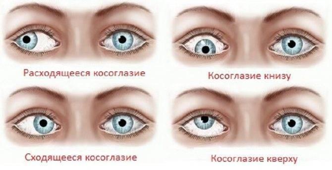 упражнения для глаз от косоглазия