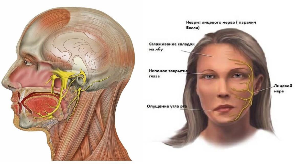 Небольшое онемение крыла носа. немеет лицо — причины, не связанные с болезнями. неврит тройничного нерва и дистония