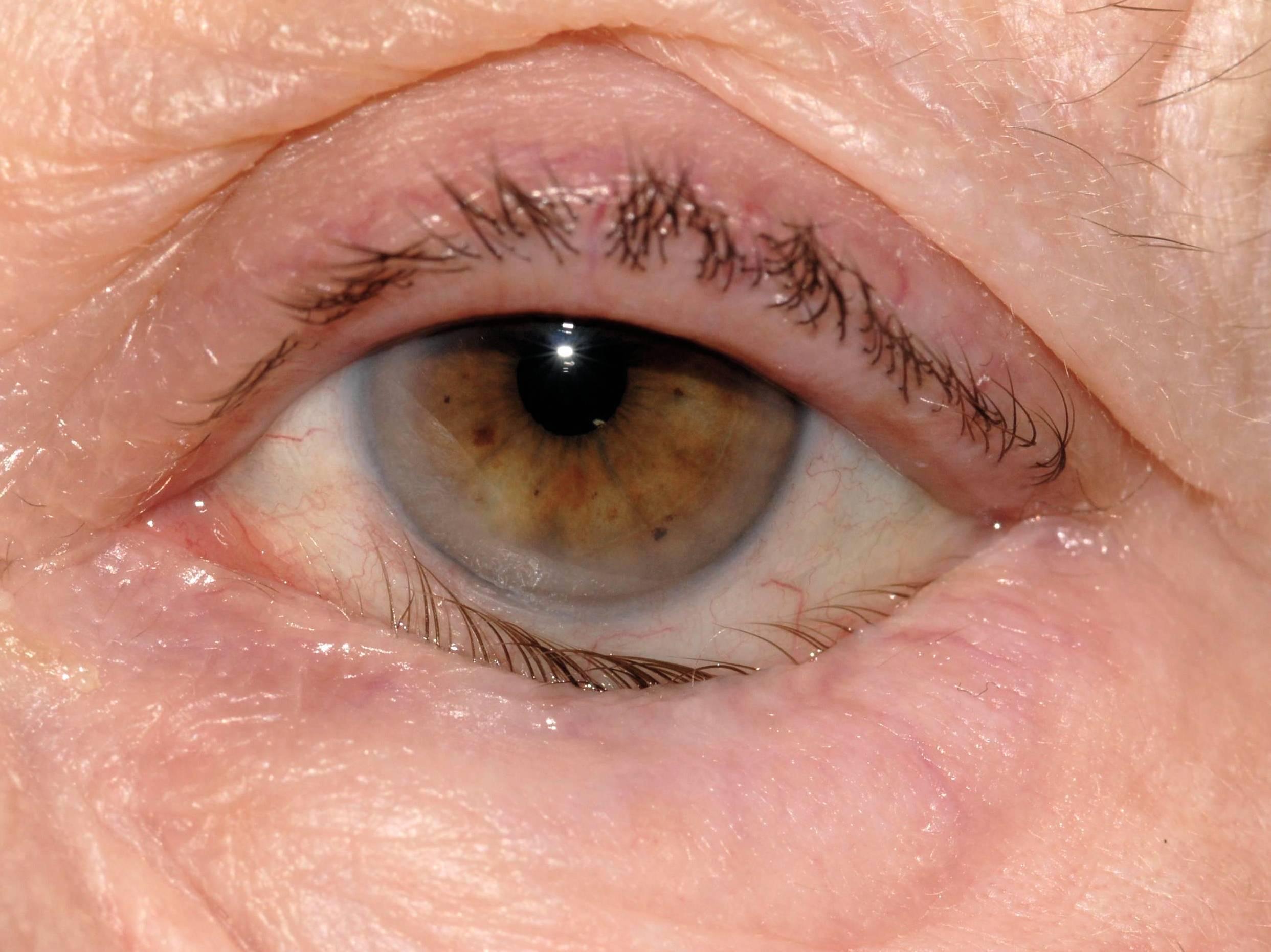 заболевание век глаз