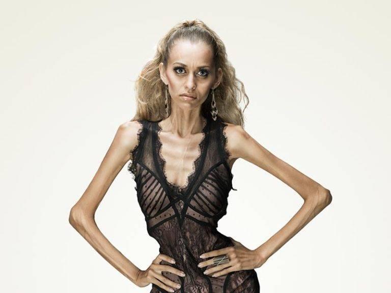Как заболеть анорексией в домашних условиях: быстрые способы (за 1 день, неделю, месяц), можно ли, советы, сколько нужно не есть, что делать