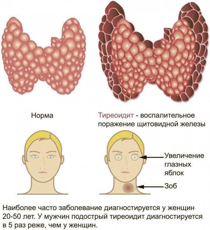 заболевание щитовидной железы тиреоидит
