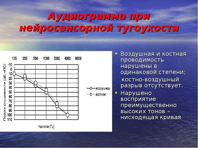 Аудиограмма: особенности проведения аудиометрии и расшифровка ее результатов