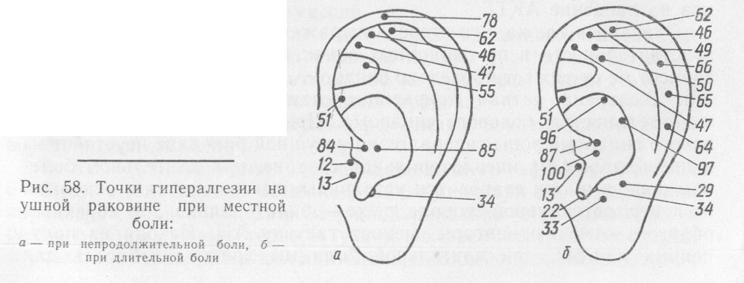 Иглоукалывание для похудения. как делается в ухо, на теле, польза и вред акупунктуры, отзывы