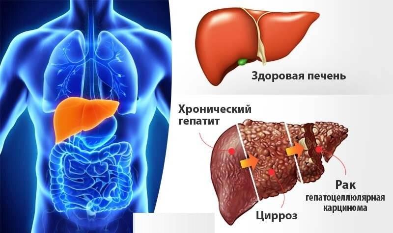 Незаметная болезнь с тяжёлыми последствиями: хронический вирусный гепатит с