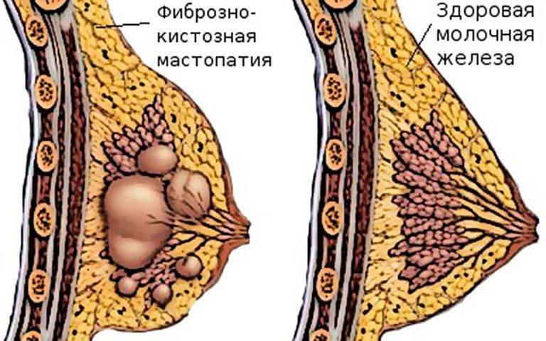 Лактостаз сколько лечиться по времени?