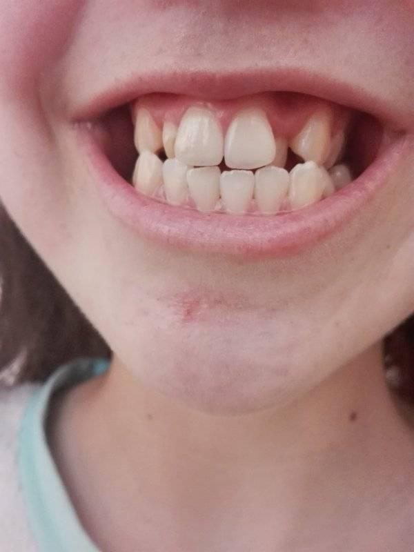 очень кривые зубы