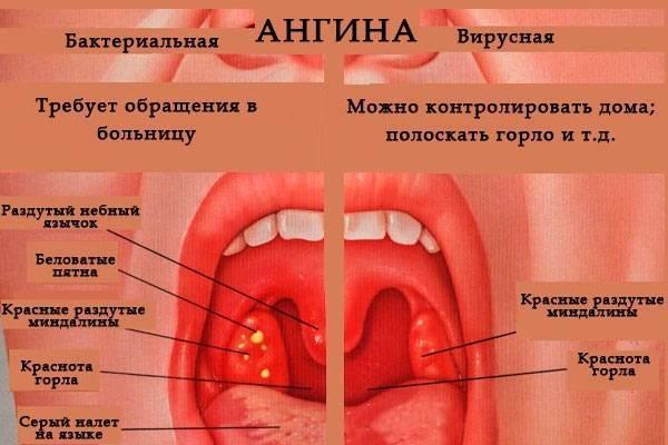 как долго держится температура при ангине