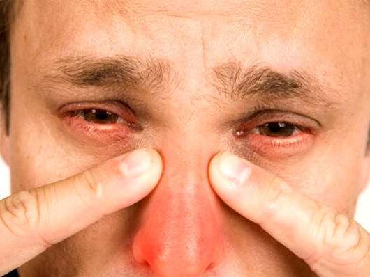 Бывает ли гайморит без насморка?
