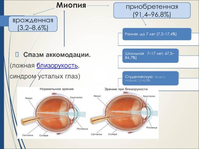 Глазные капли для снятия спазма аккомодации