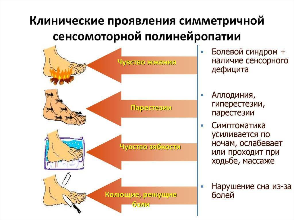 дистальная сенсорная полинейропатия