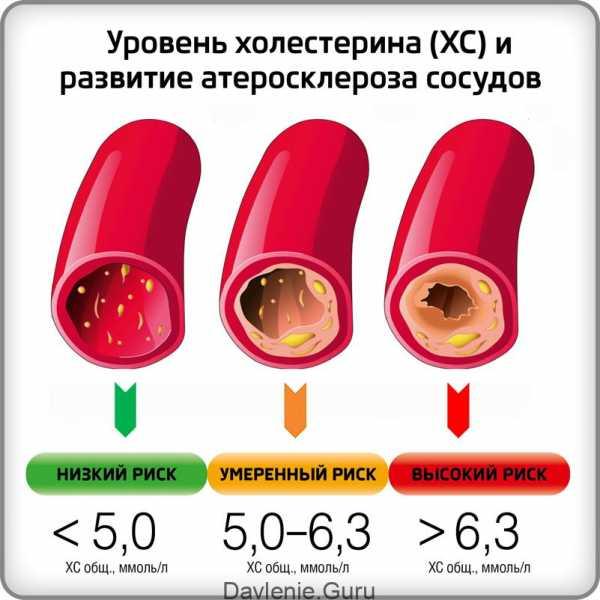 Холестерин лпнп - норма содержания в крови. как сдавать анализ на холестерин