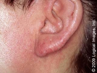 аллергический дерматит за ухом