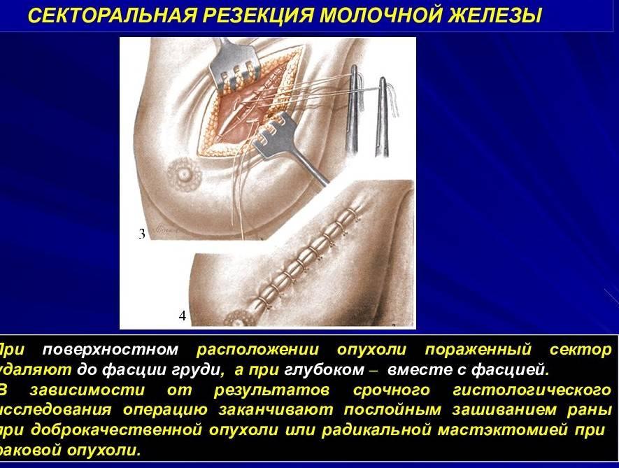 Методы и особенности лечения рака молочной железы на разных стадиях