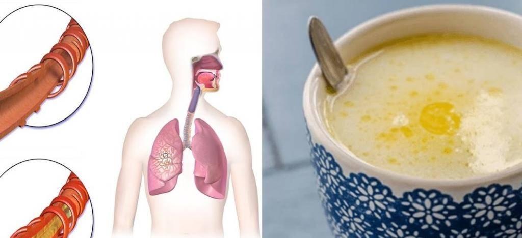 Застарелый кашель у взрослого лекарства