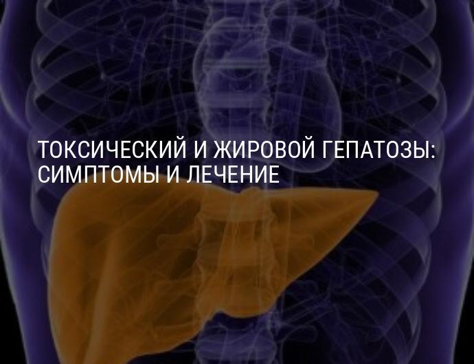 Как лечить жировой гепатоз печени