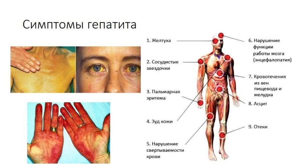 Первые симптомы гепатита с: когда появляются, насколько выражены и что делать?