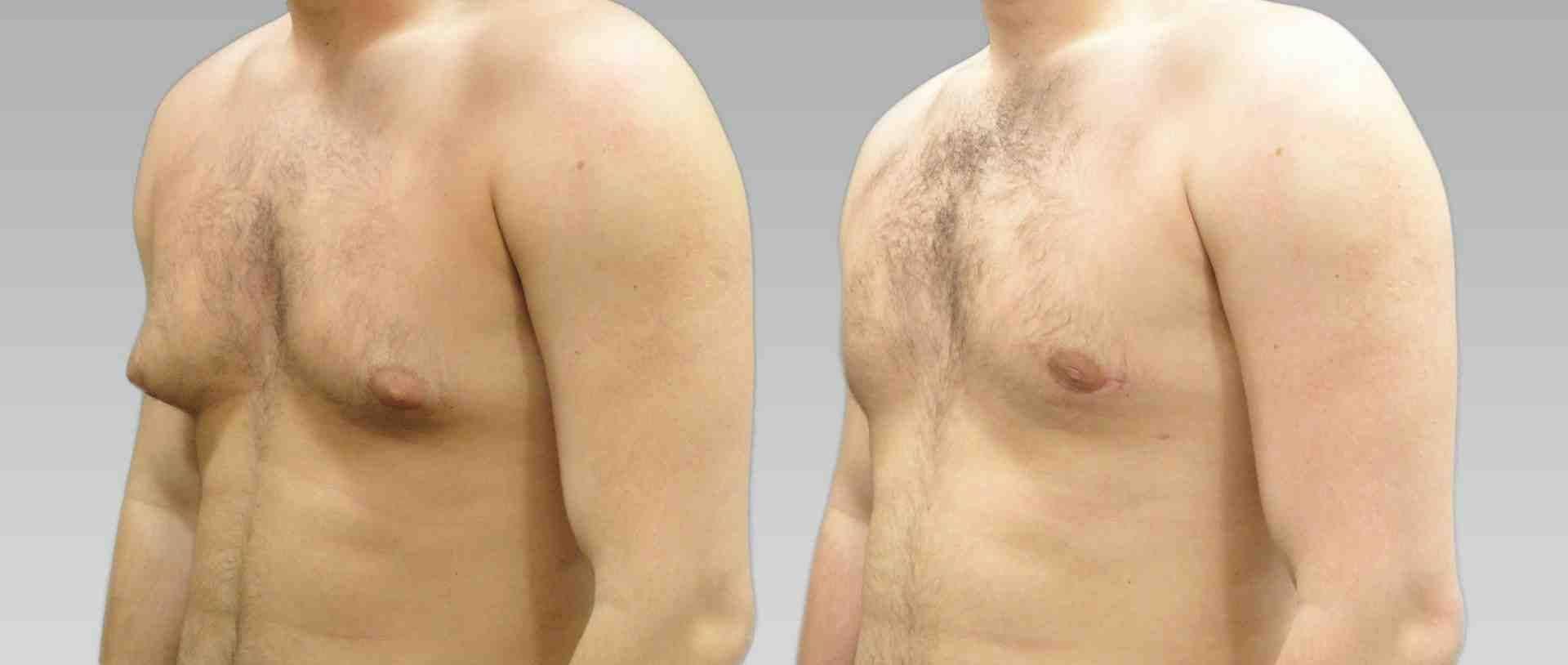 Лечение гинекомастии у мужчин – причины и последствия гинекомастии