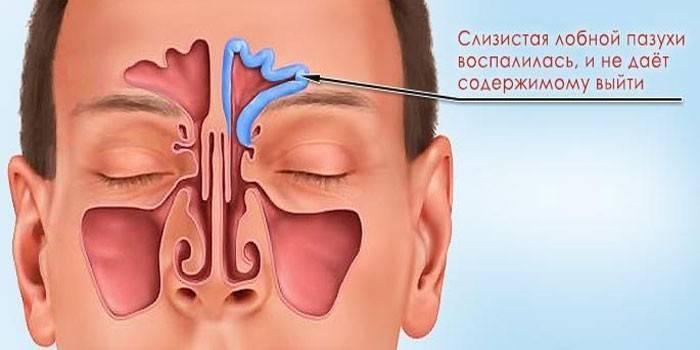 Хронический полипозный синусит симптомы лечение