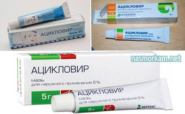 Герпес в носу: симптомы и лечение заболевание