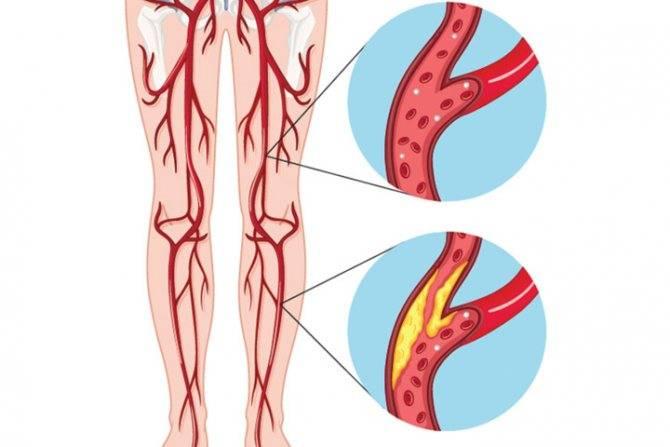 Атеросклероз сосудов шейного отдела позвоночника лечение