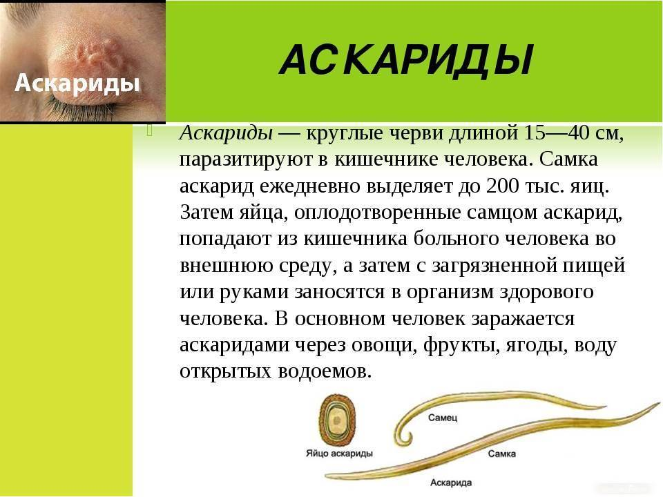 Лечение аскаридоза у взрослых народными средствами