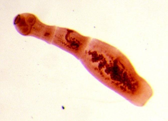 Анализ крови и другие способы выявить эхинококков у человека