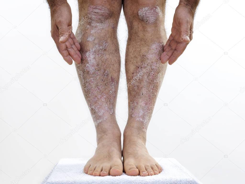 чем лечить псориаз на ногах