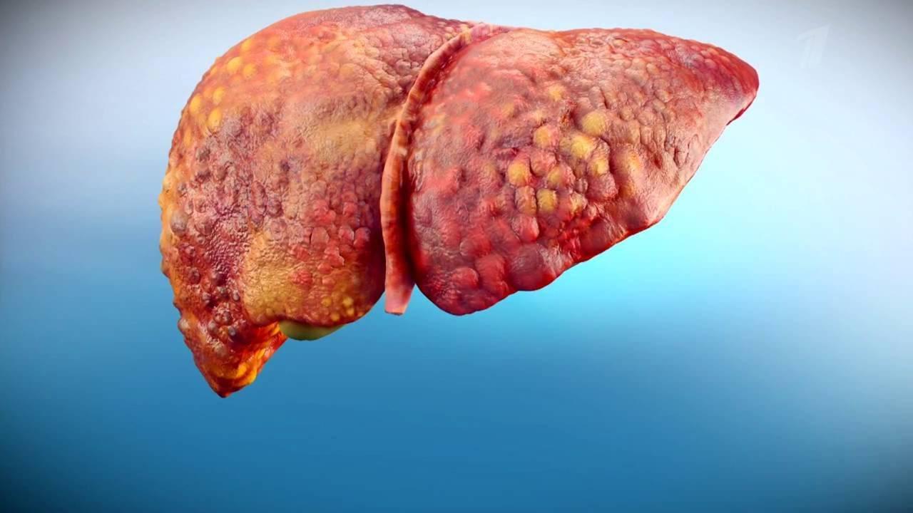 что такое вирусный гепатит с