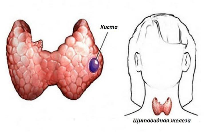 Киста на щитовидной железе: причины, симптоматика, опасность для человека