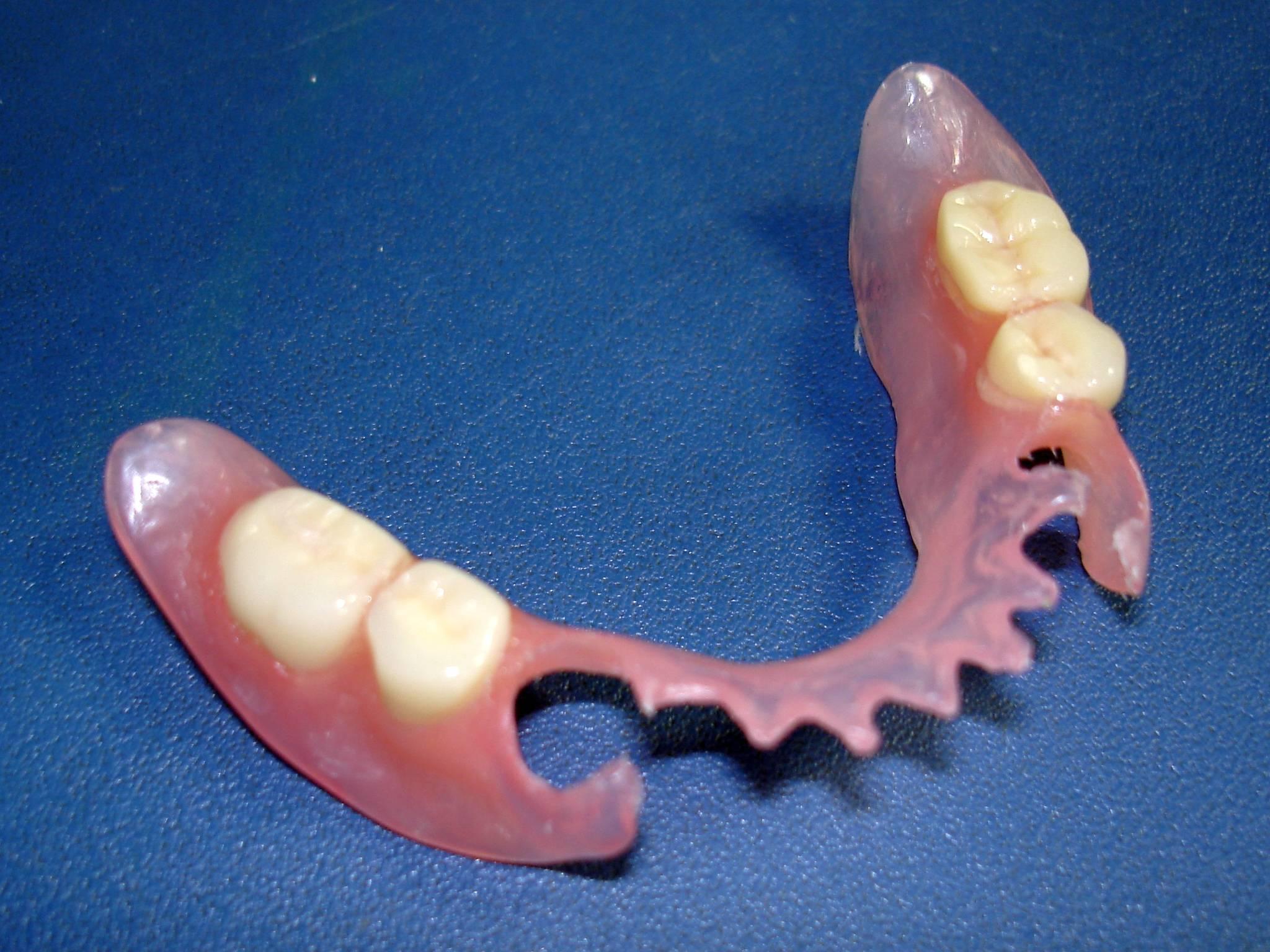 зубные протезы из нейлона