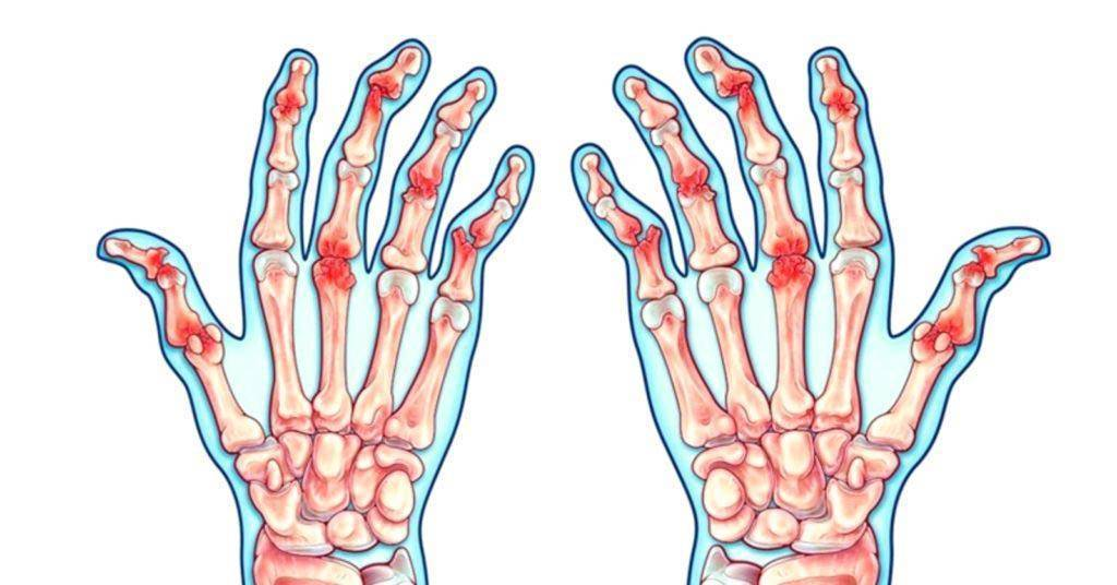 Псориатический артрит рук и ног – симптомы, признаки, диагностика, лечение и питание