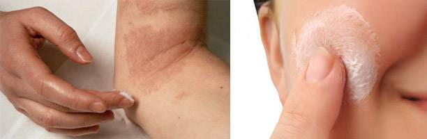 Лечение чистотелом кожных болезней: рецепты народной медицины