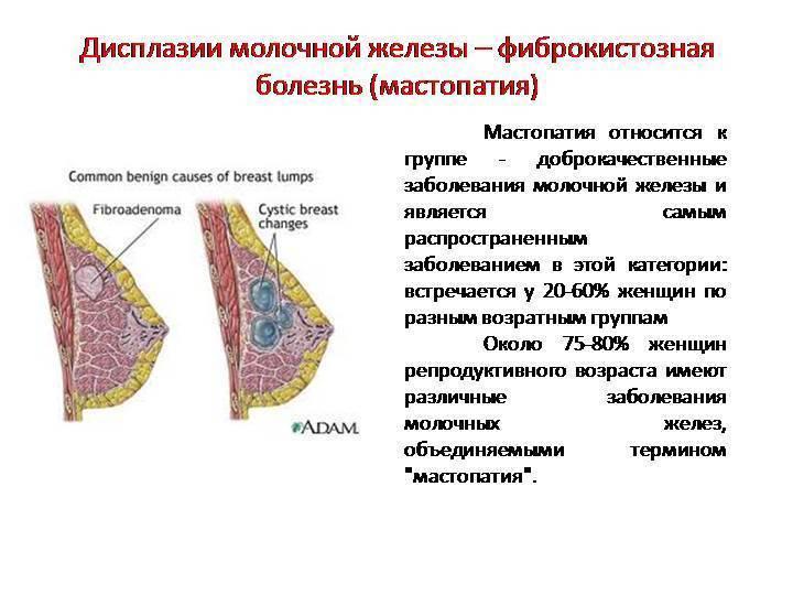 Симптомы и диагностика диффузной мастопатии молочных желез
