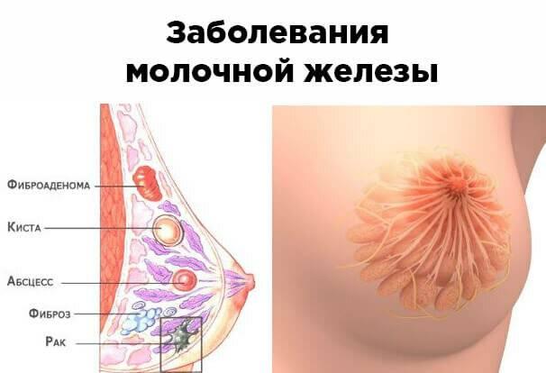 Заболевания молочной железы, возникающие у женщин. разновидности новообразований