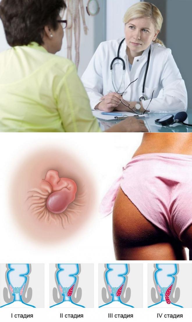 Геморрой после родов:  вопросы проктологии и советы по лечению