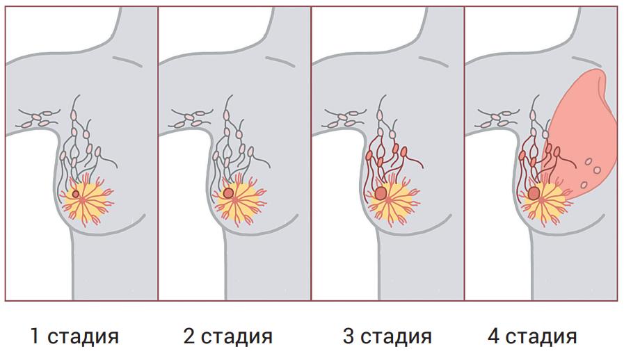 Причины развития рака молочной железы 3 степени