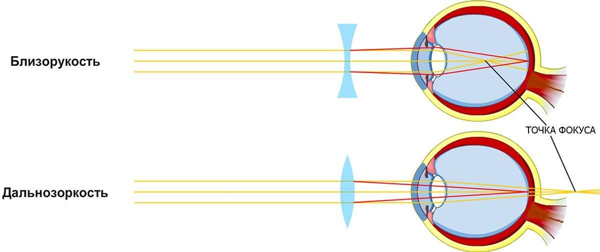 Здесь вижу — а тут не вижу: отличия близорукости и дальнозоркости