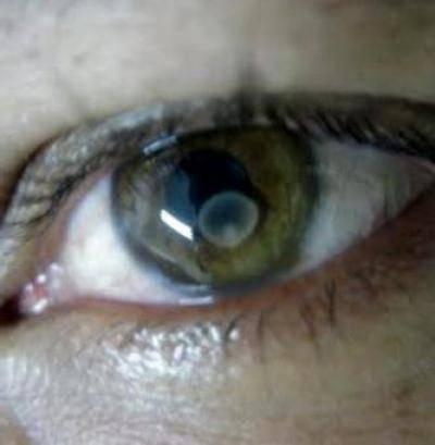 Цистицеркоз глаз: возбудитель, симптомы и лечение
