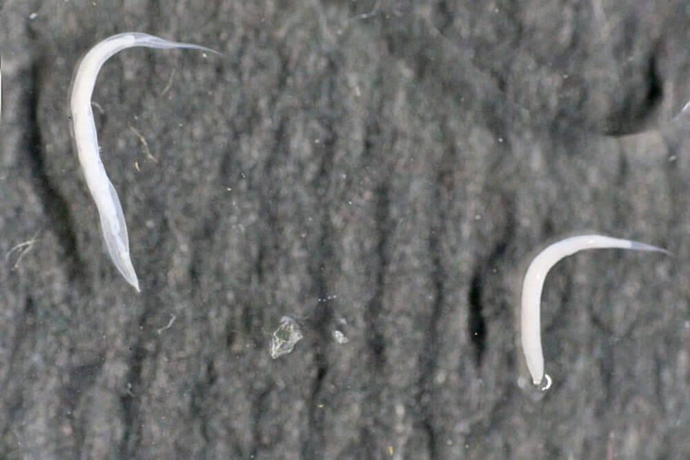 Глисты и паразиты во влагалище: могут ли быть и что делать | все о паразитах