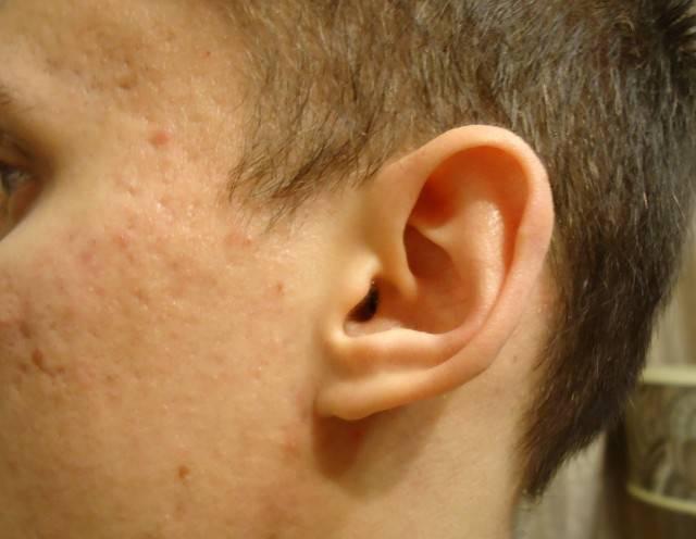 Атерома за ухом: вопросы хирургии и советы по лечению