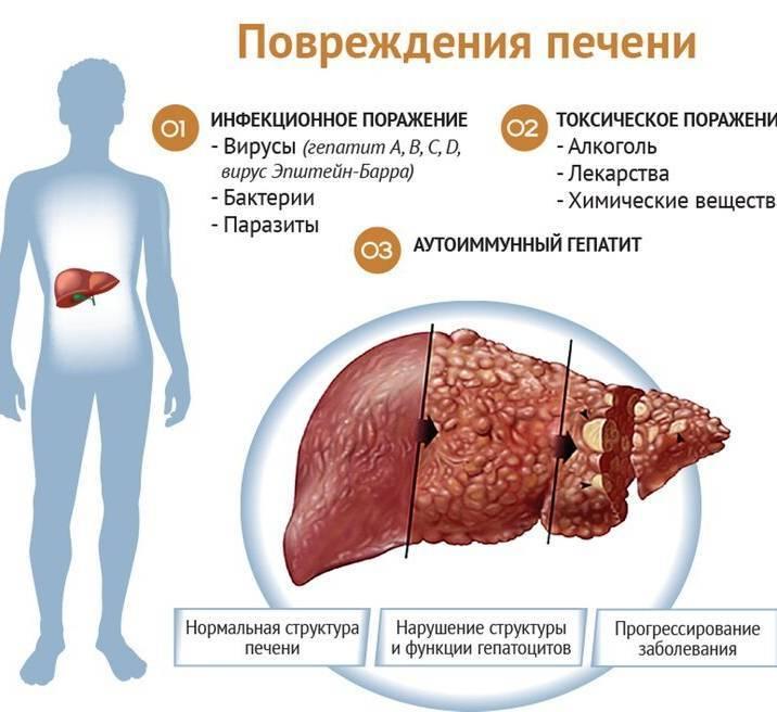 Как лечить гепатит с в домашних условиях - эффективные лекарственные препараты и народные средства