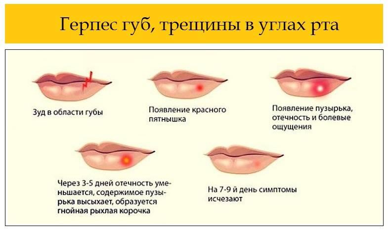 Чем прижечь герпес на губах: целесообразность данного действия, стоит или нет?